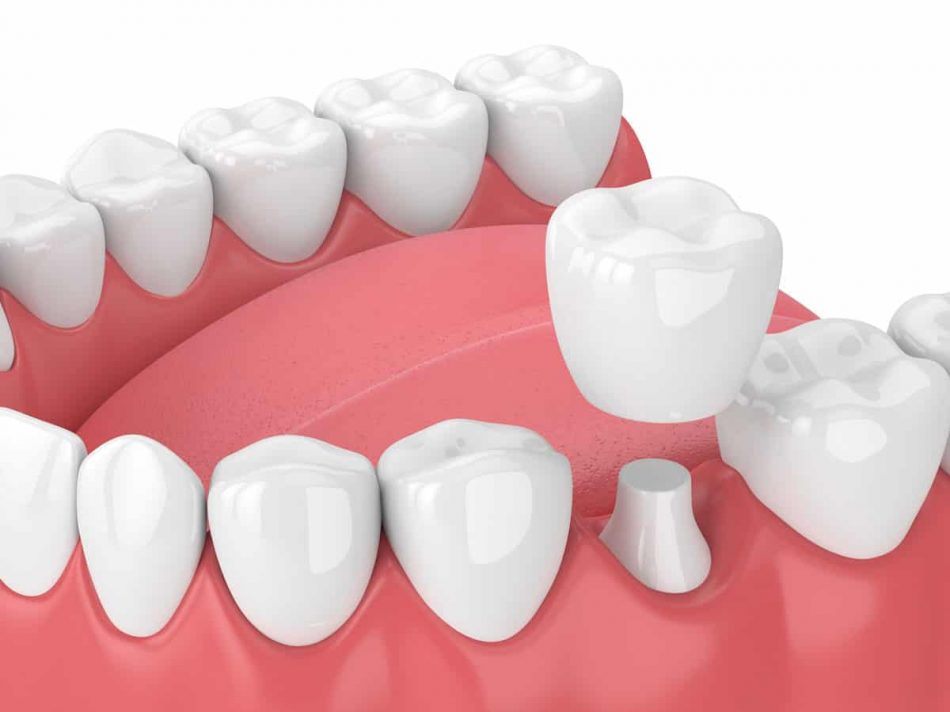dental-crown-marina-dentistry
