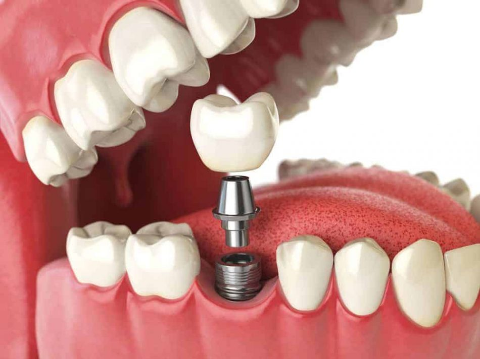 dental-implants-marina-dentistry