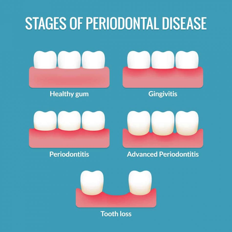 periodontal-disease-marina-dentistry